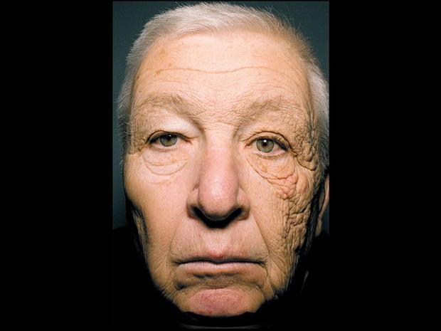 twarz mężczyzny, działanie słońca na organizm